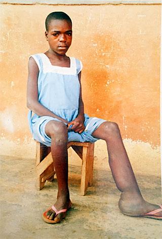 hilfe kinder missbildungen behinderungen spenden behindert afrika hilfswerk. Black Bedroom Furniture Sets. Home Design Ideas